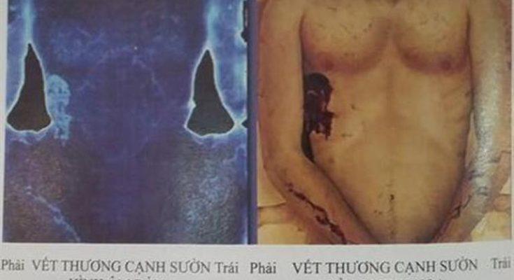 Chúa Giêsu bị đâm cạnh sườn bên phải chứ không phải bên trái